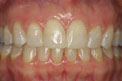 Patient 10 - Cosmetic Bonding After