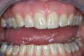 Patient 10 - Cosmetic Bonding Before