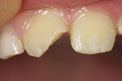 Patient 18 - Fractured Tooth Before