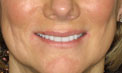 Patient 4 - Smile Makeover After