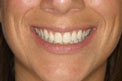 6-Month Smile After Treatment